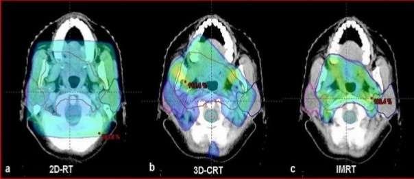 3Dimensional-Conformal-Radiation-Therapy